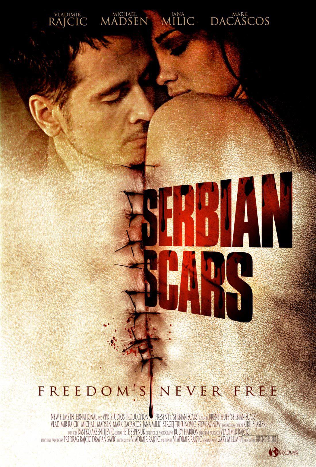 serbian-scars-01